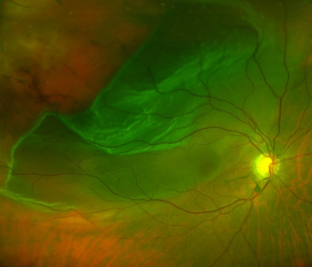Retinal Detachment Affordable Retinal Detachment Surgery