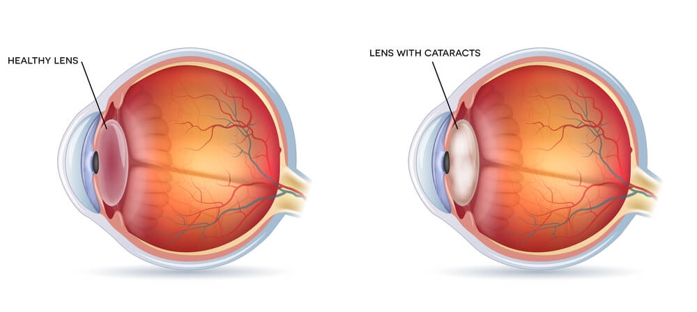 lens with and without cataract