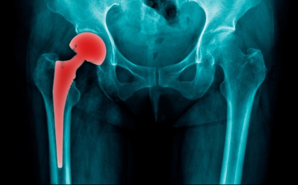 Hip Replacement | Hip joint replacement in Ukraine